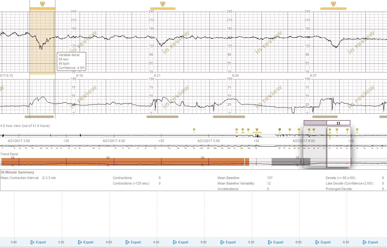 PeriGen's Cues offers cutting-edge L&D strip analysis