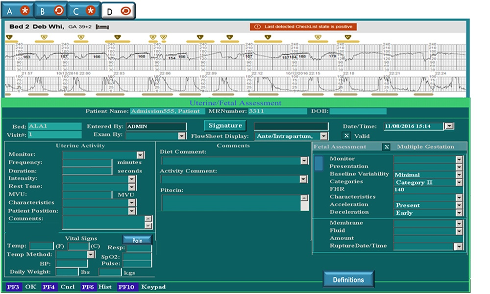 PeriWatch Tracings designed by clinicians for clinicians to provide smoother workflow