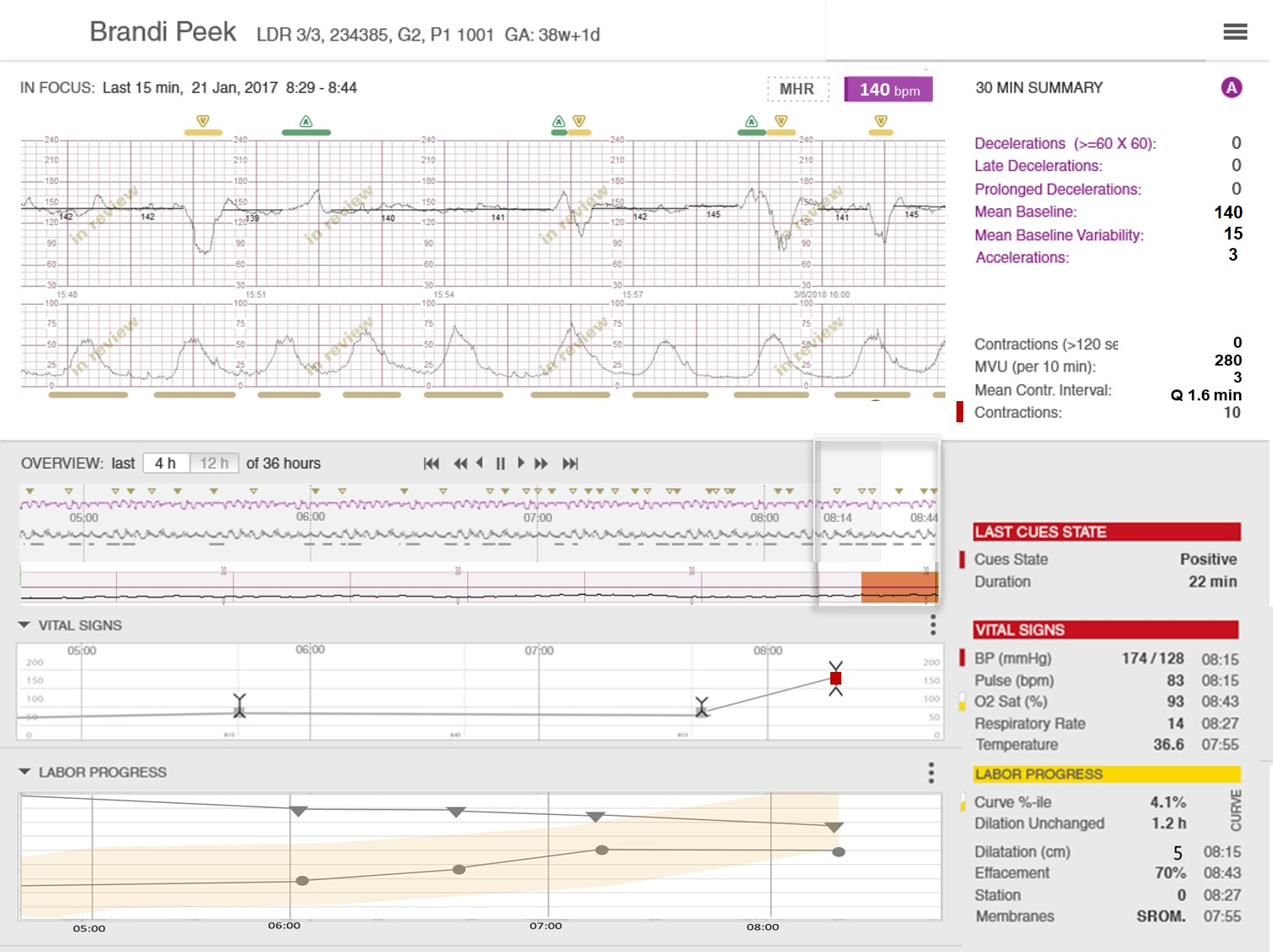 PeriWatch Vigilance, the first automated perinatal early warning system